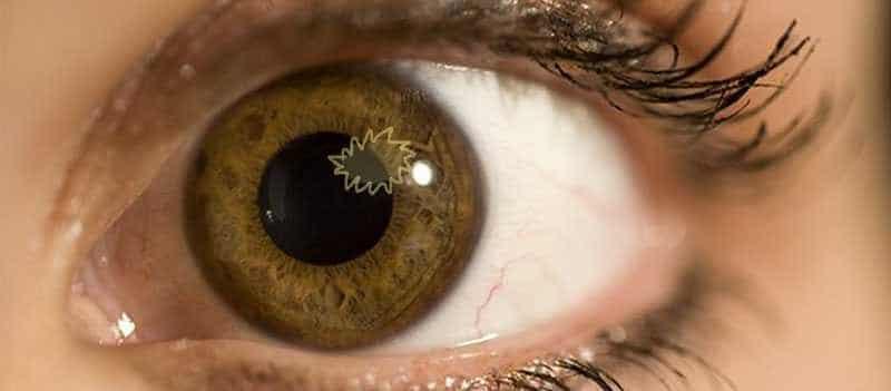 PET3f665e oko